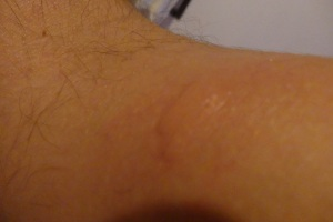 Picadura de mosquito tailandes